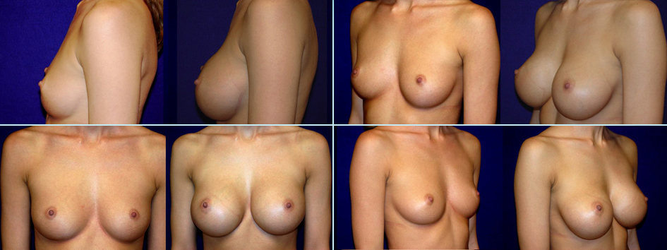 Breast augumentation b cup something
