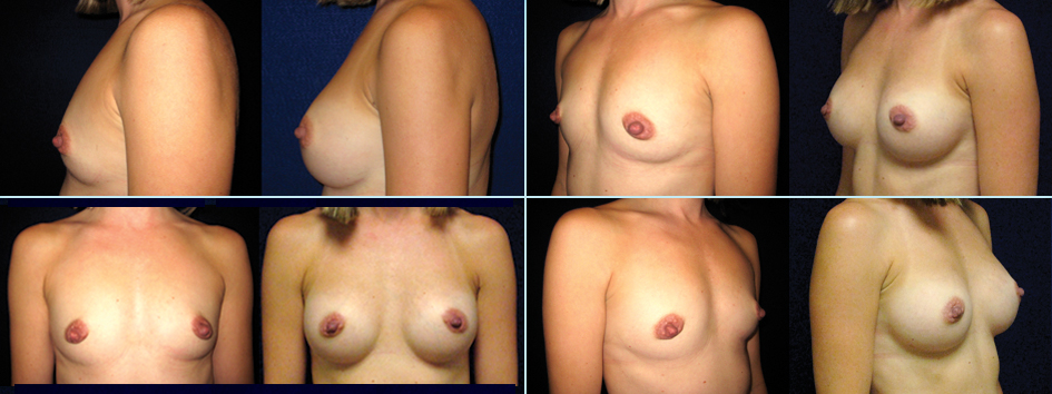 Case 4 - Breast Augmentation After Pregnancy